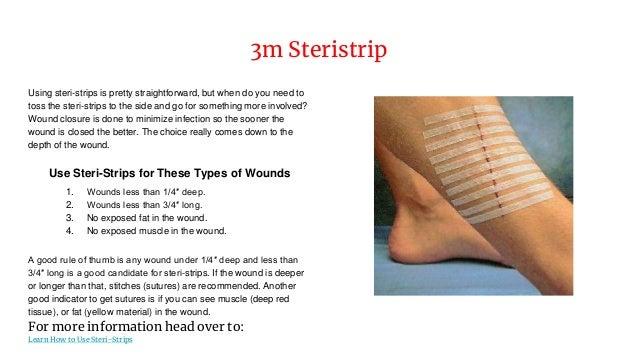 3m steri strips instructions