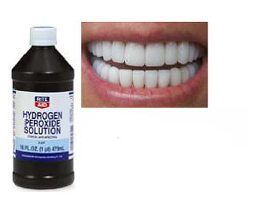 hydrogen peroxide mouth rinse instructions